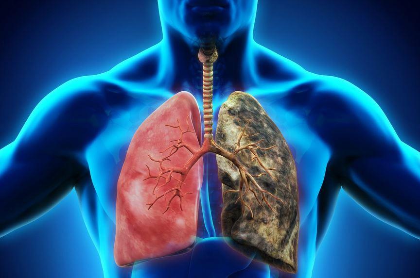 Respiratory Diseases - Sleep WA